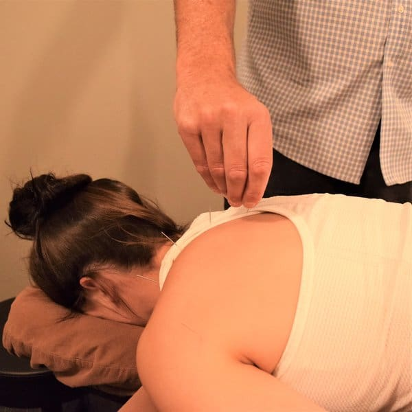 Dr Fielder performing acupuncture at Evolve Schaumburg IL